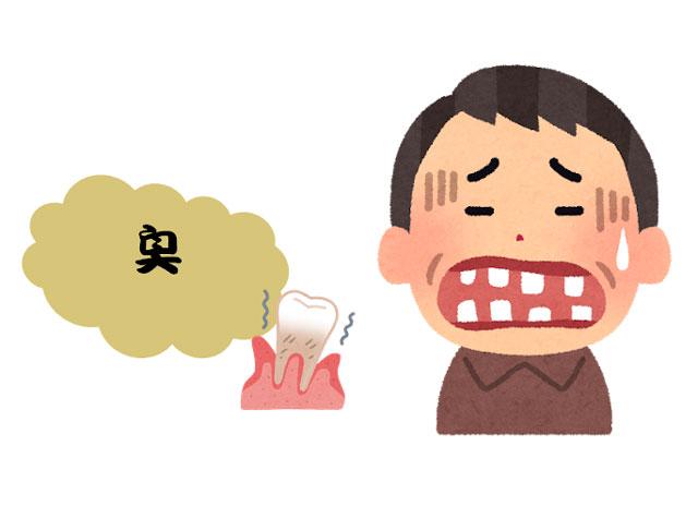 歯周病が原因で口臭が出ている人